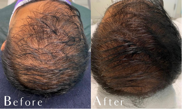 Before, during and after 3rd of the 3 recommended treatments