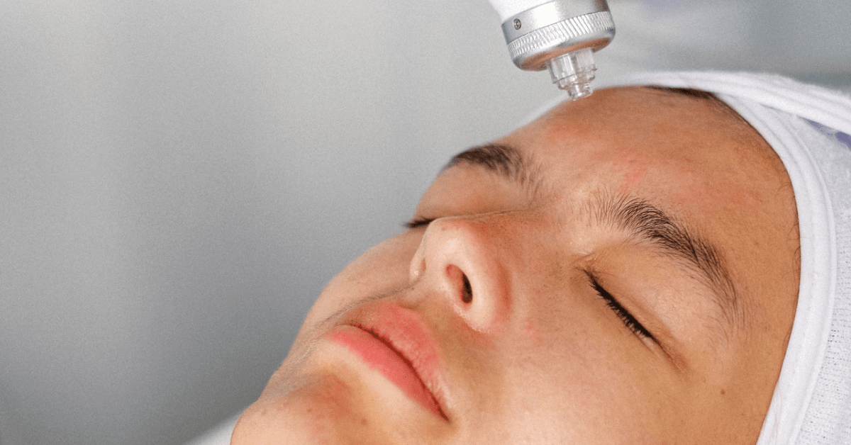 How Microneedling Drastically Improves Your Skin | First Impressions Clinic